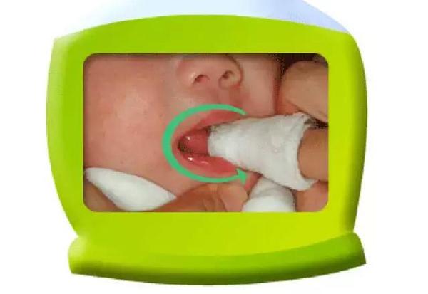 Tiêu chuẩn chọn gạc rơ lưỡi cho trẻ sơ sinh