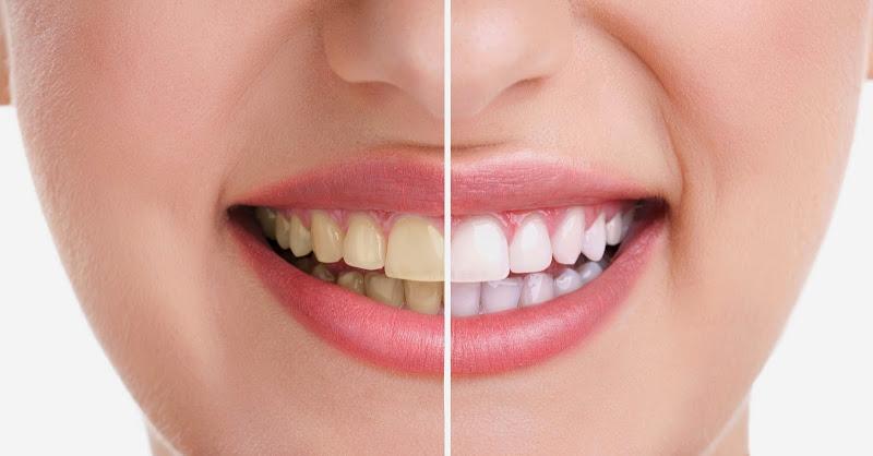 Đánh răng thường xuyên mà răng ngày càng đục màu là sao?