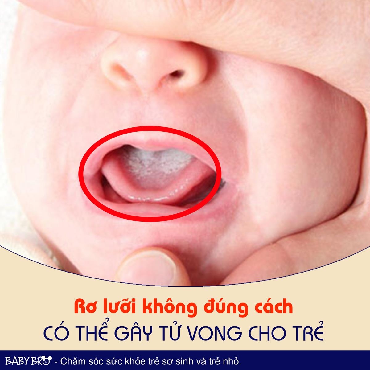 Rơ lưỡi không đúng cách có thể gây tử vong cho trẻ.